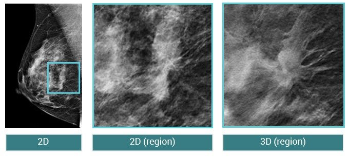 3D Mammography & 3D Tomosynthesis - Women's Imaging