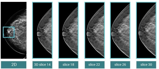 breast tomosynthesis cpt Digital breast tomosynthesis is billed to insurance using cpt 77063 to find out the cost of digital breast tomosynthesis at uw health, please call priceline at (608) 263-1507.