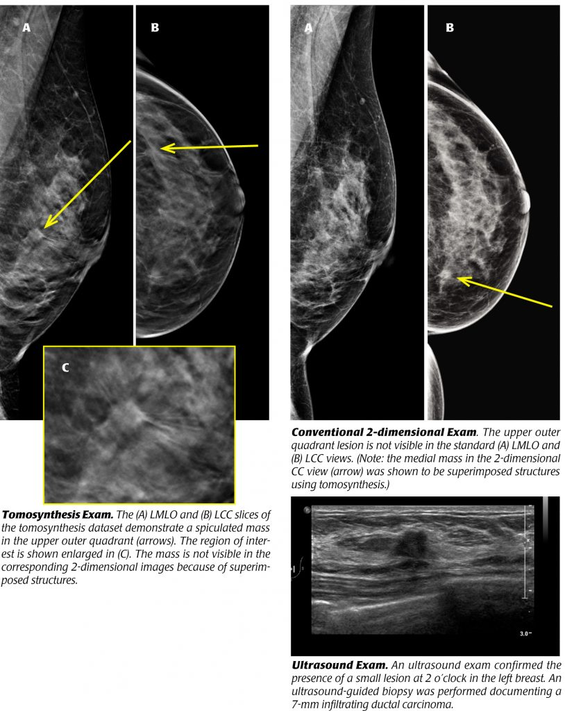 Tomosynthesis, revolutionary screening for breast cancer - XRAMN