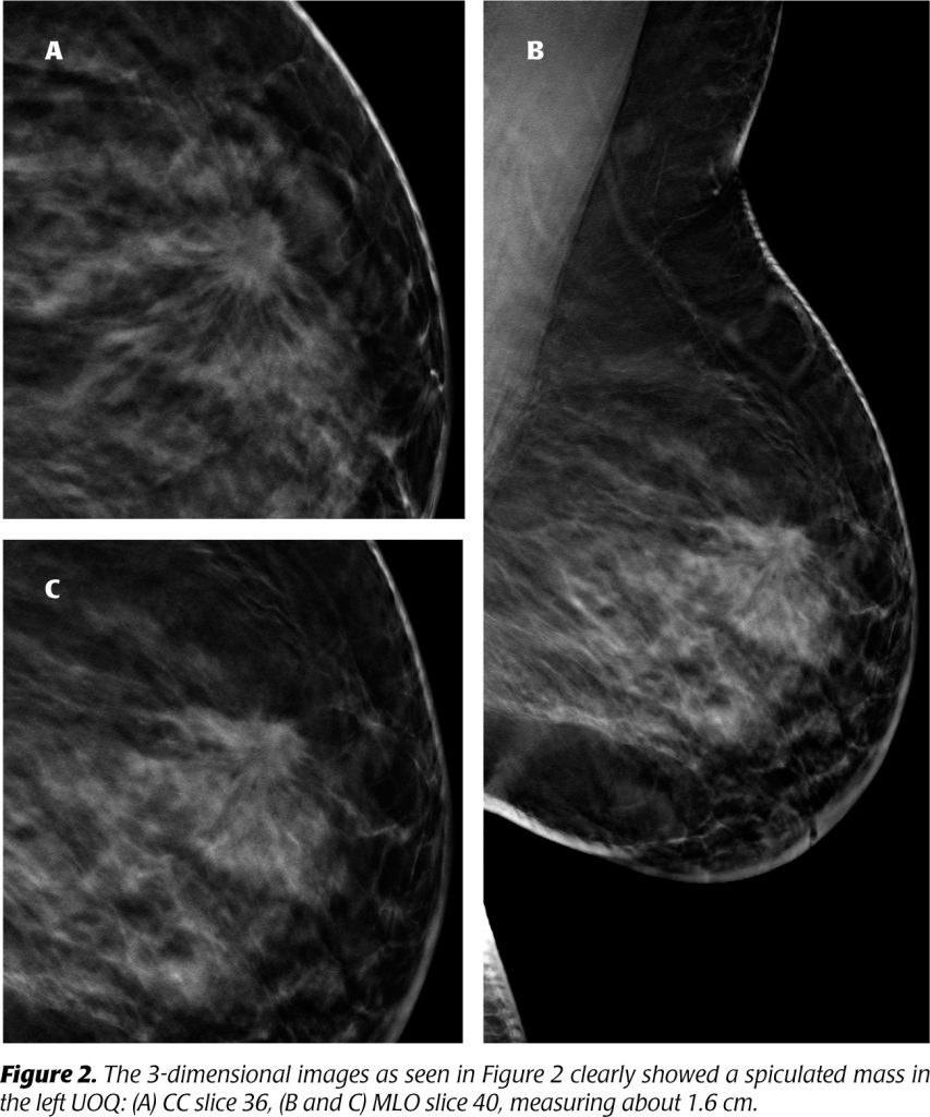 Tomosynthesis, Definitive image for improved breast cancer diagnosis - XRAMN