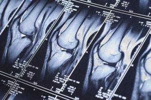 mri scan knee farmington
