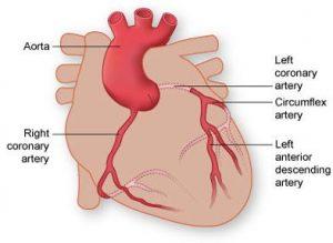 Coronary Artery Disease   Almagordo, Albuquerque - XRAMN