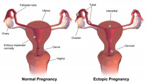 Diagram of healthy and un healthy pregnancy