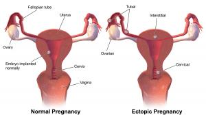 Diagram of healthy and un healthy pregnancy