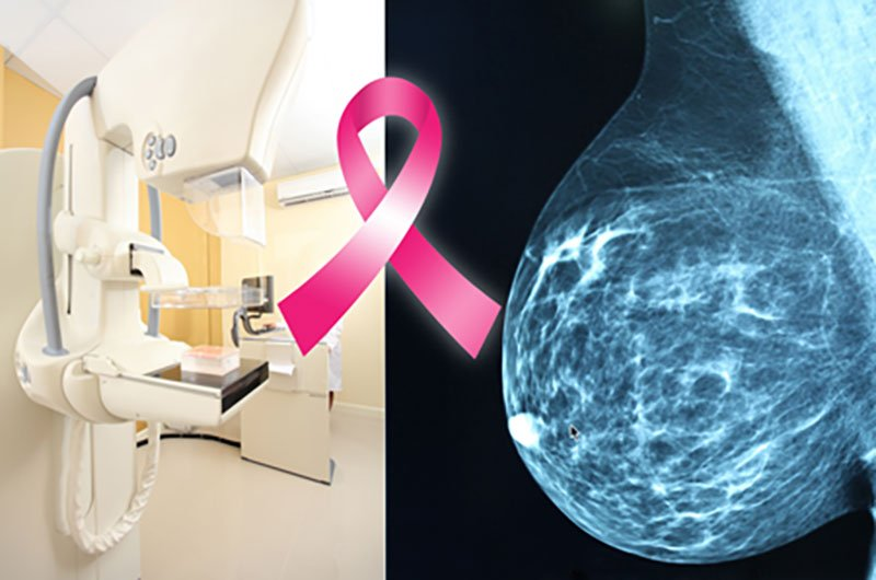 Albuquerque breast surgery