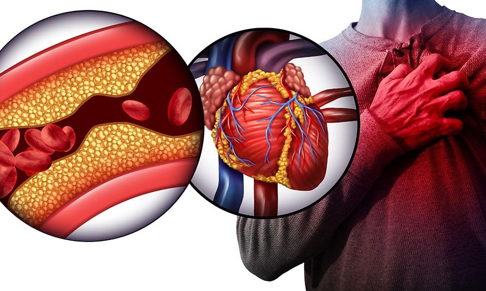 Peripheral Artery Disease - XRAMN